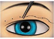 吊線雙眼皮原理